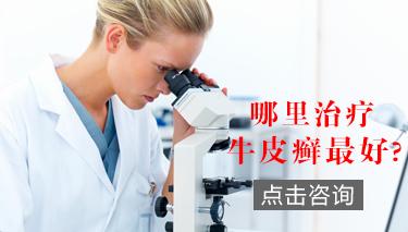 关节型牛皮癣如何诊断?.jpg